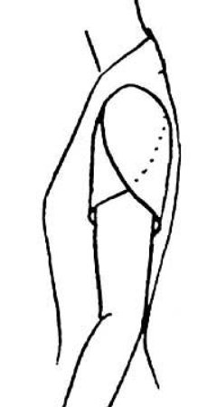 petal-sleeve-a